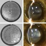 目の水晶体が透明になる仕組みを東大ら解明